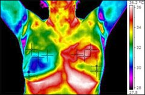 suffolk ny breast Thermography
